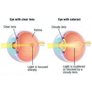 cataract-causes