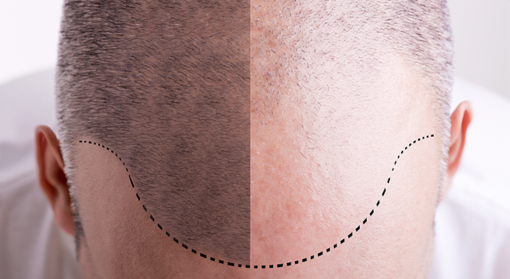 stock-photo-top-view-of-a-men-s-head-with-a-receding-hair-line-before-and-after-271183676