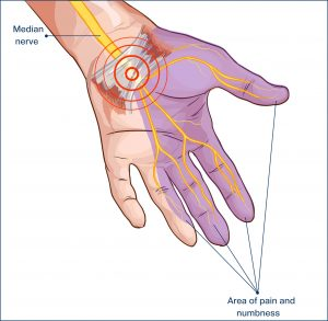 73199850 - transverse carpal ligament compressed median nerve hand